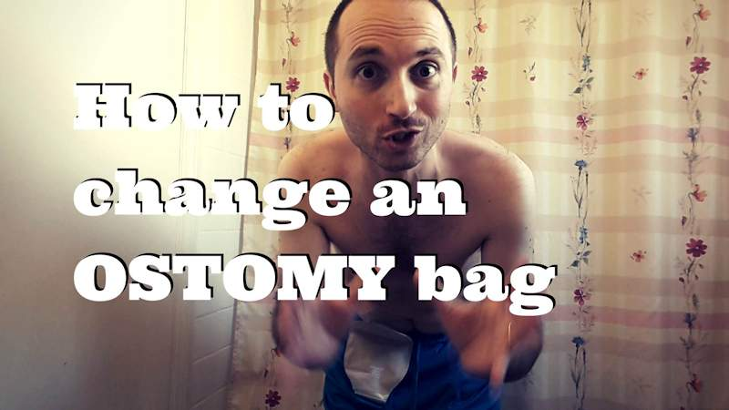 How to change an OSTOMY bag header