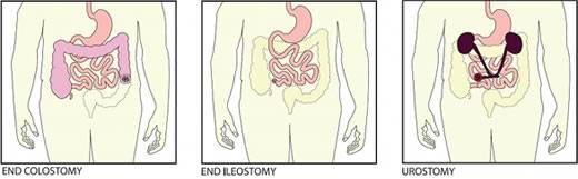 Types of ostomies (Image courtesy of 3M)