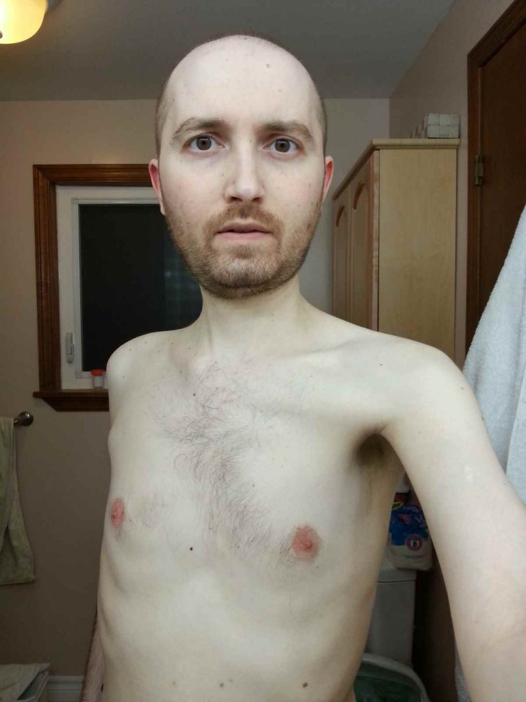 Crohn's skinny 127lbs