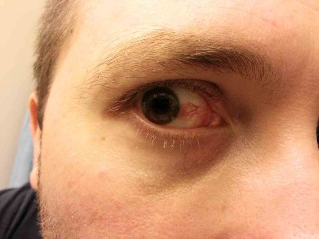 Crohn's eye inflammation