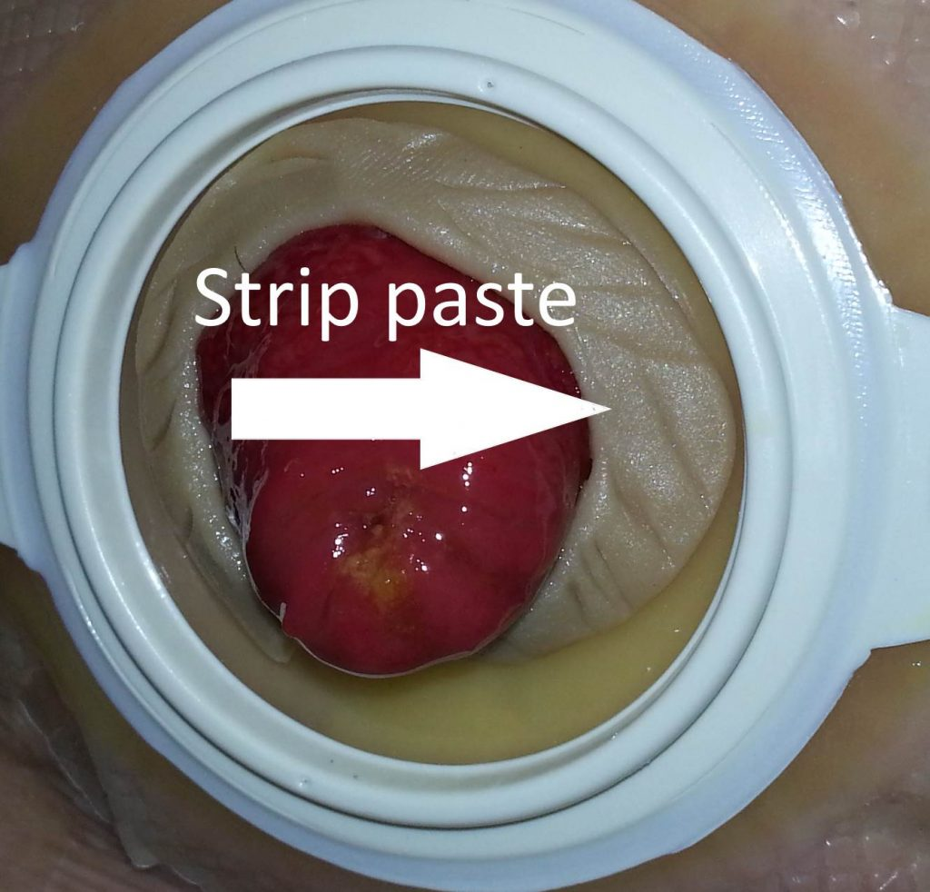 Ostomy stoma strip paste