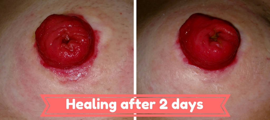 Stoma Healing after 2 days small