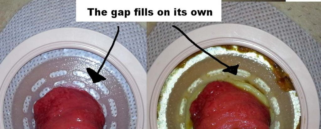 Ostomy wafer gap