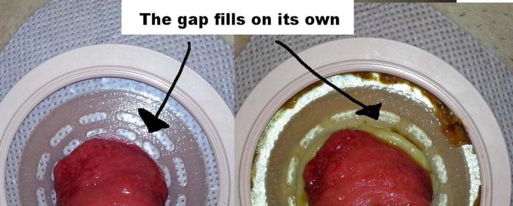 Ostomy wafer gap