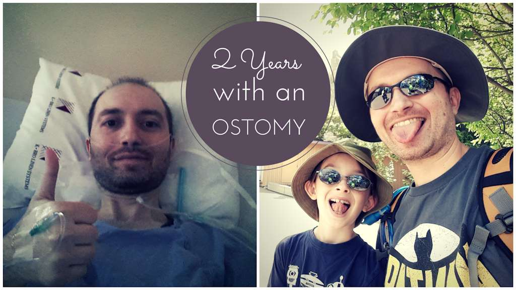 VeganOstomy 2ND YEAR STOMAVERSARY header