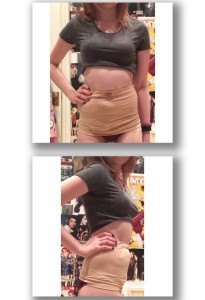 Ostomy Wrap – Beige