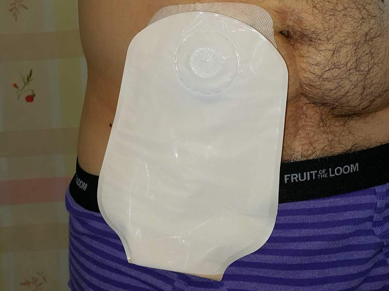 Wearing the ConvaTec Natura opaque ostomy bag