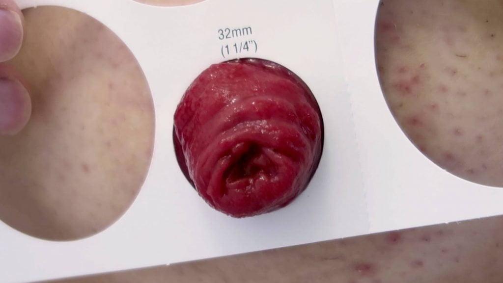 Stoma measuring guide around stoma