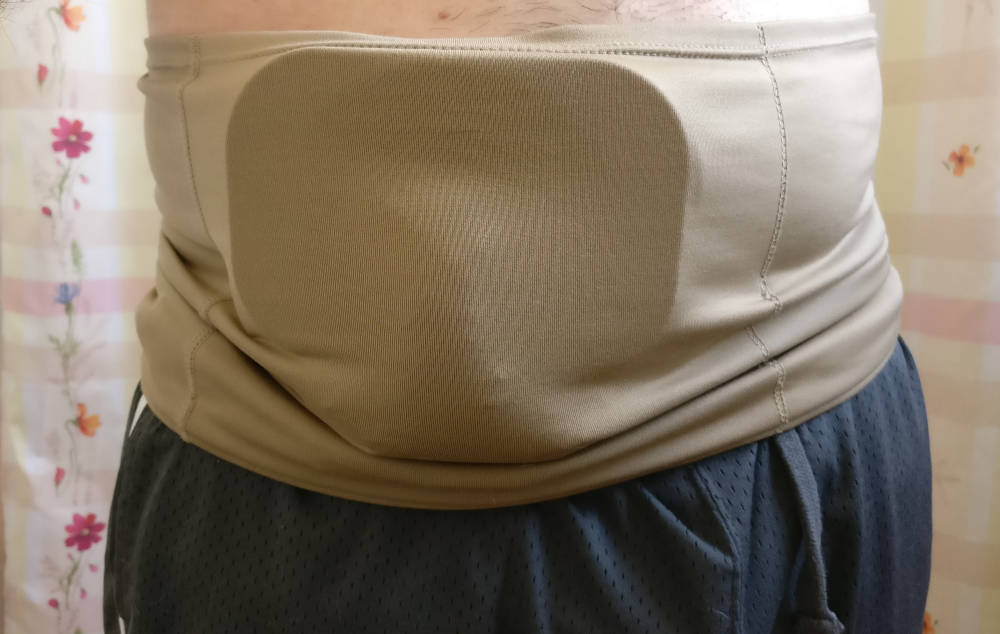Stoma Protector keyhole plate under wrap with full bag