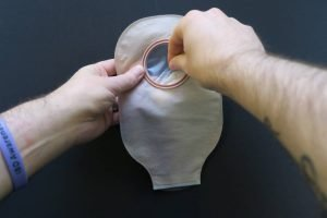Putting Eakin perform into back of ostomy pouch