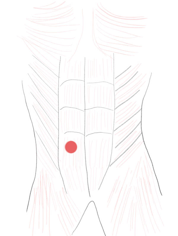 Ideal stoma placement
