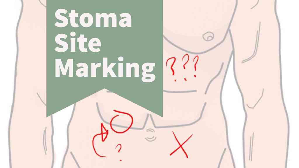 Stoma site marking header small