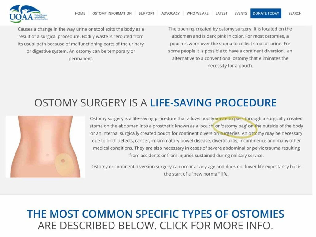 UOAA ostomy bag reference