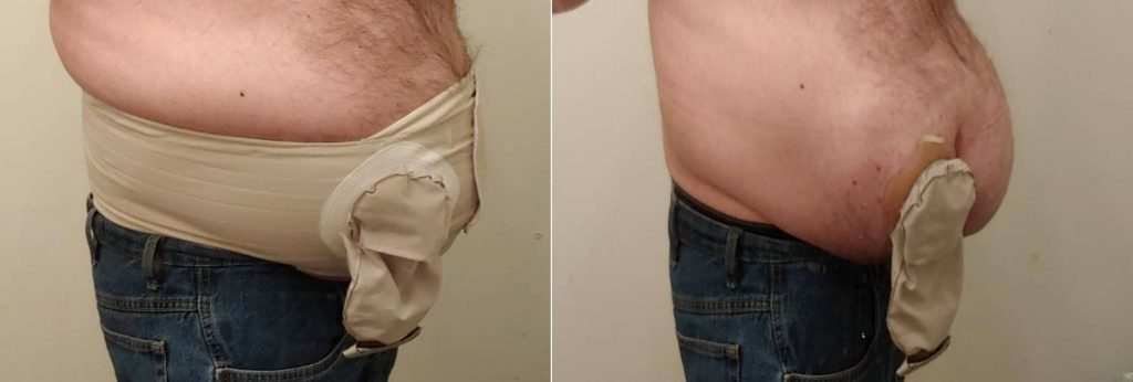 Hernia helper supporting large hernia right side