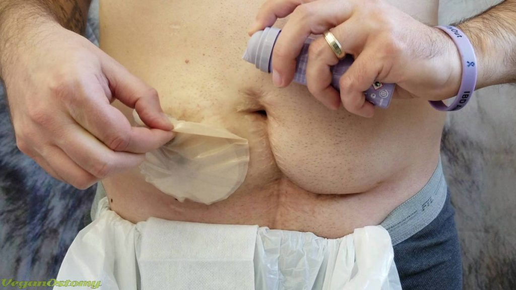 Removing a stoma cap