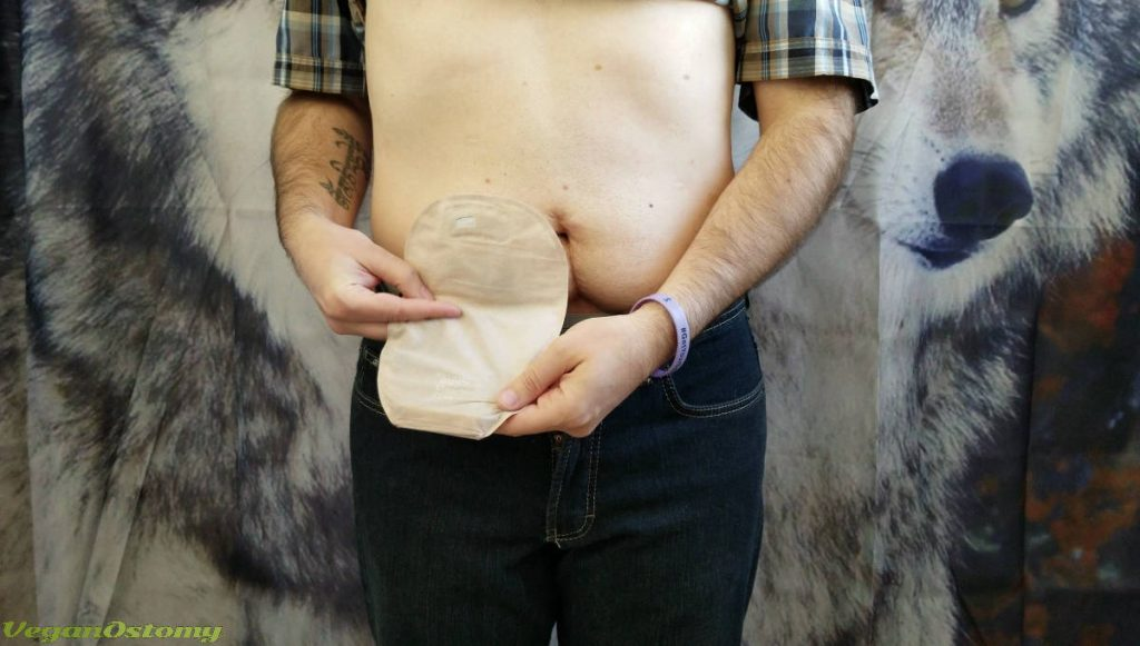 Emptying a StomaTuck VeganOstomy